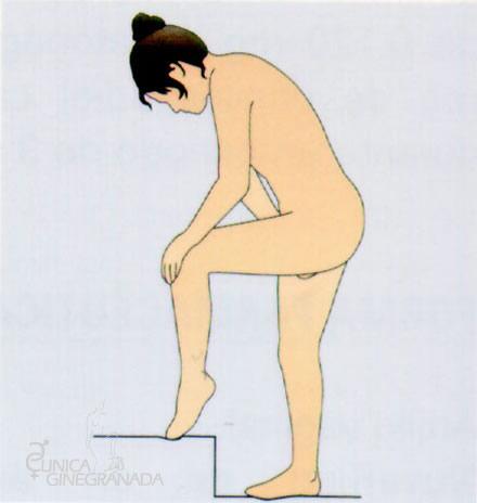 Anillo mensual vaginal (NUVARING)