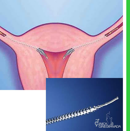 Dispositivo intratubárico (Essure)