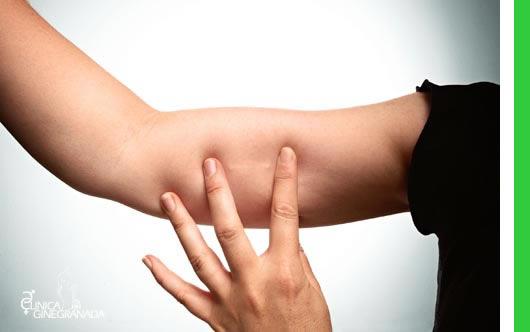 Implanon es un nuevo sistema de implante anticonceptivo